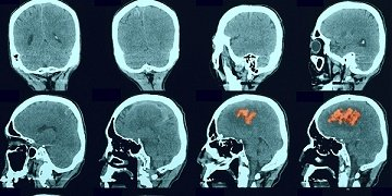 brain scan results showing stroke