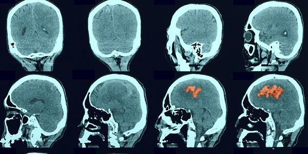 CT scan showing stroke
